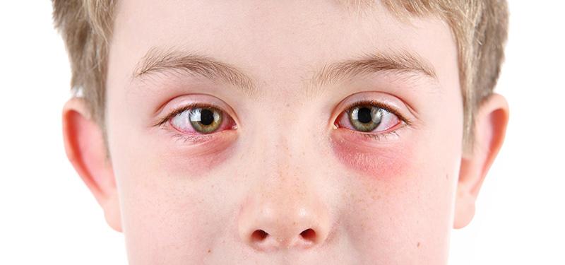 Dị ứng là nguyên nhân phổ biến gây ngứa mắt và quanh mắt
