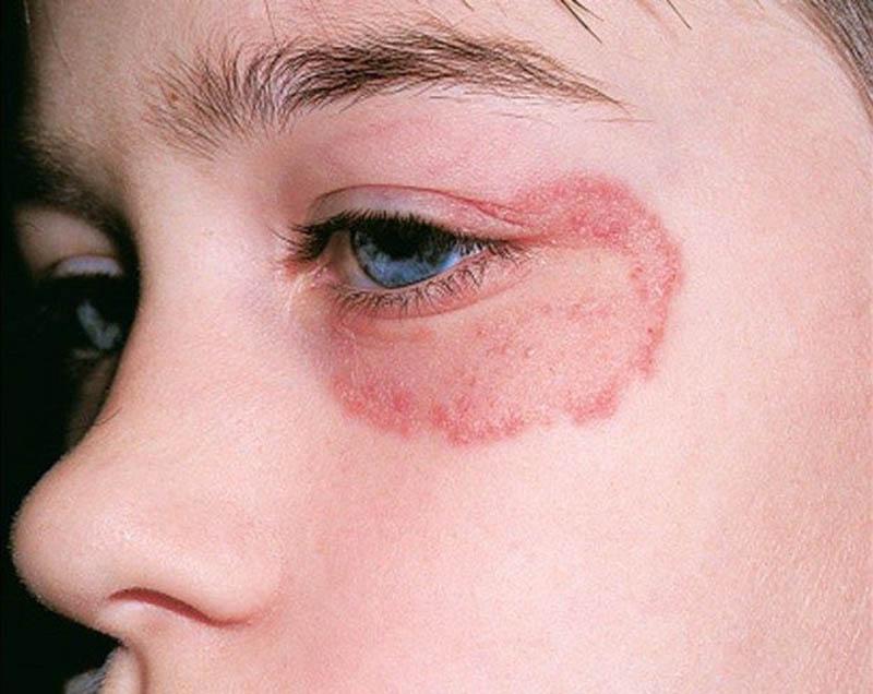 Khi bị nhiễm nấm, vùng da dưới mắt trở nên ngứa, mẩn đỏ, nóng rát