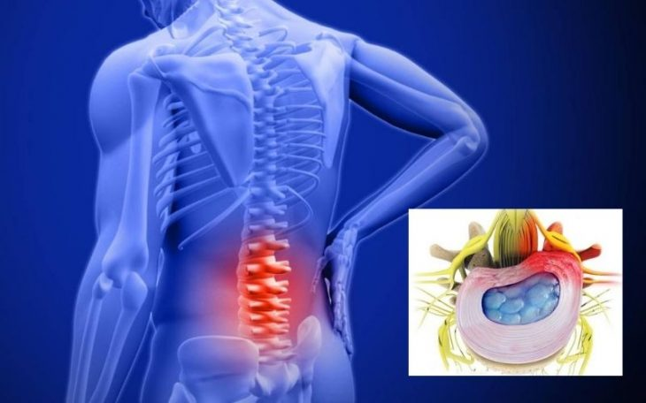 Phồng đĩa đệm: Nguy cơ biến chứng nguy hiểm và cách phòng ngừa