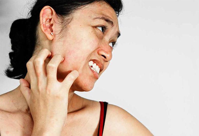 Cào gãi, chà xát lên da có thể làm tăng các nguy cơ hình thành sẹo