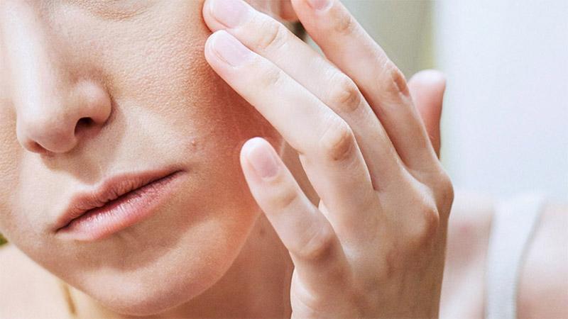 Phát hiện sớm và chủ động điều trị khoa học sẽ giúp cải thiện da và ngừa sẹo hiệu quả