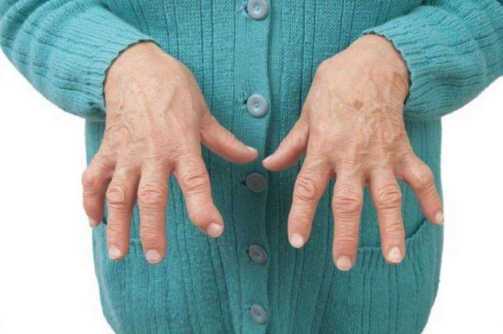 Sưng khớp ngón tay lâu ngày gây biến dạng khớp, teo cơ