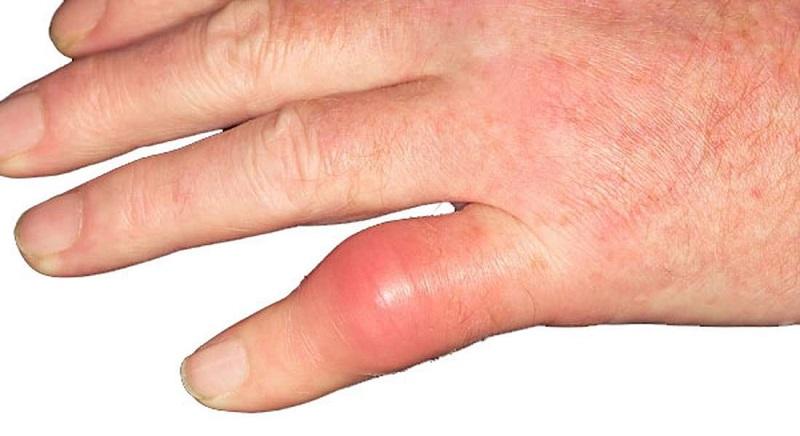 Sưng khớp tay do nhiều nguyên nhân gây nên