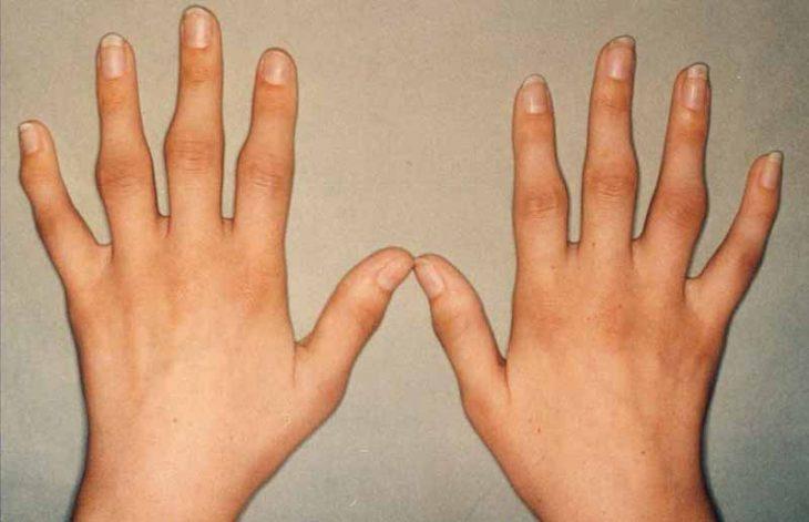 Sưng khớp tay là do đâu và xử lý thế nào?