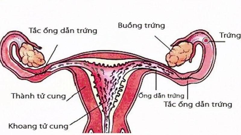Tắc vòi trứng có thể gây vô sinh ở nữ giới