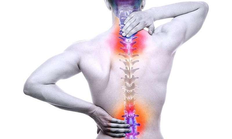 Thoát vị đĩa đệm chèn dây thần kinh là một bệnh lý thường gặp