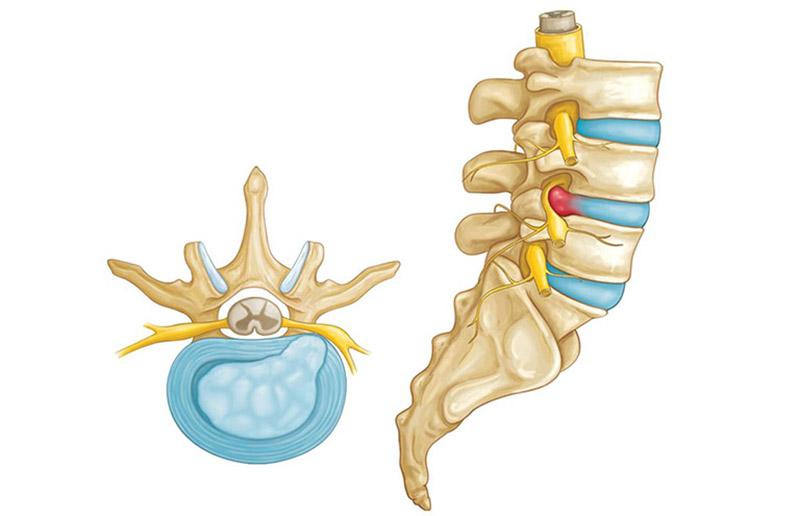 Bệnh thoát vị đĩa đệm cột sống thắt lưng với nhiều triệu chứng khó chịu