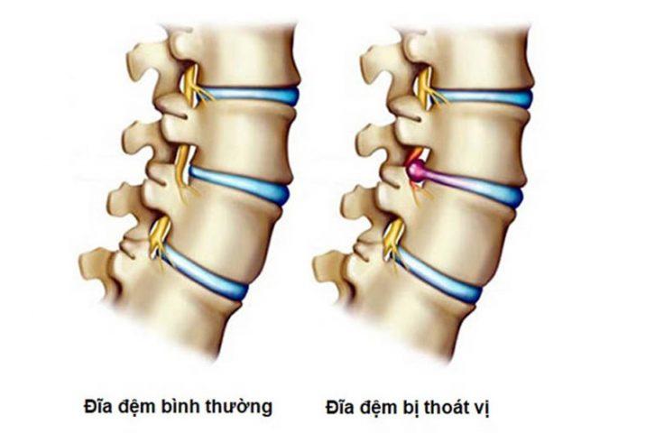 Thoát vị đĩa đệm L5 S1 - bệnh lý xương khớp nguy hiểm