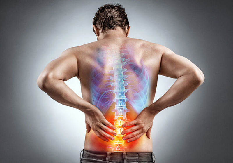 Thoát vị đĩa đệm thể trung tâm là một căn bệnh khá phổ biến hiện nay