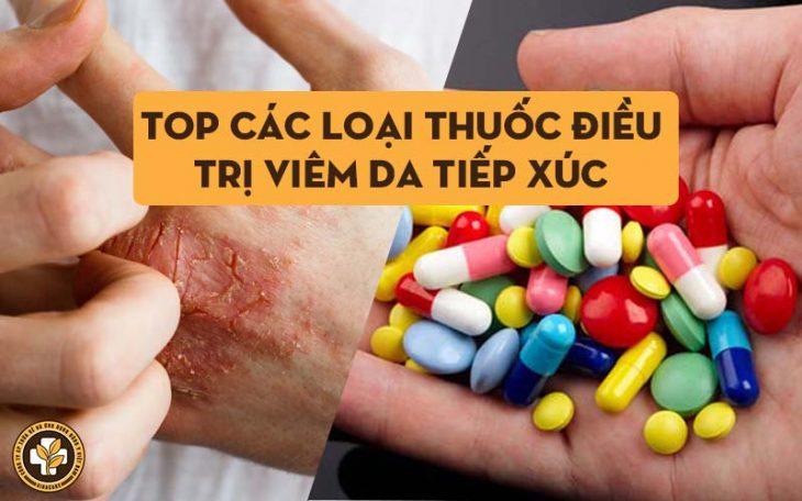 Các loại thuốc điều trị viêm da tiếp xúc hiện nay