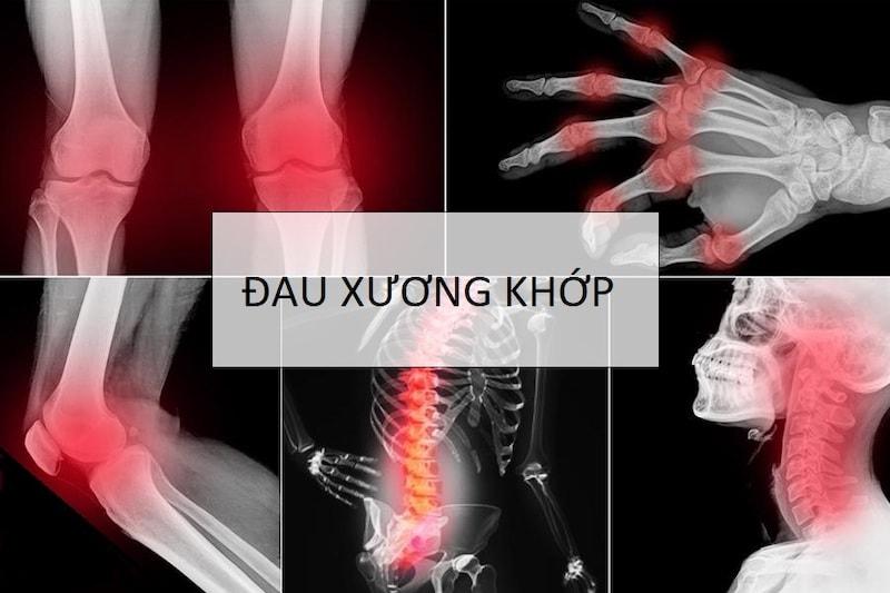 Thuốc xương khớp Hàn Quốc loại nào điều trị tốt?