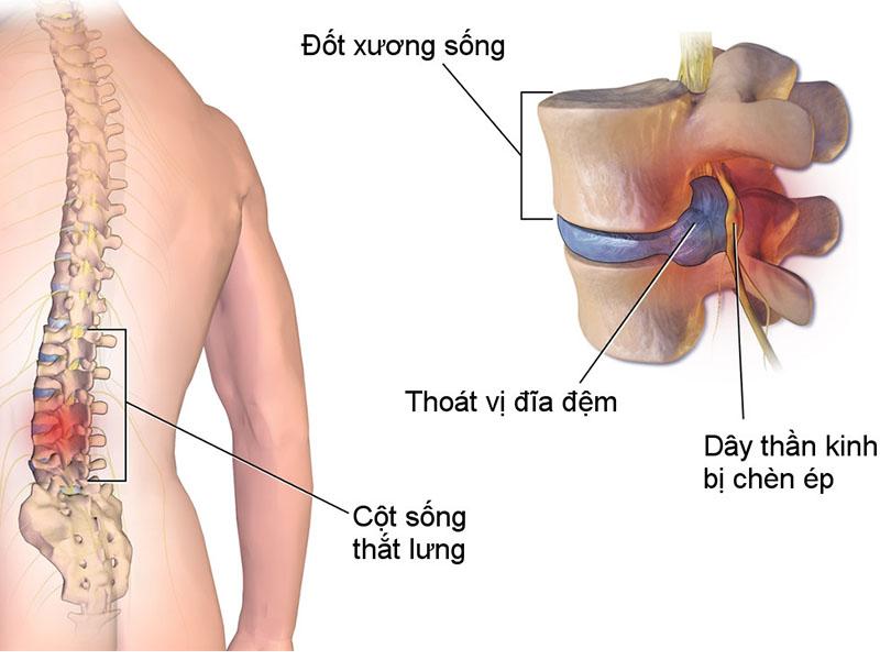 Bệnh nhân thoát vị đĩa đệm sẽ được kiểm tra chi tiết trước khi thực hiện tiêm ngoài màng cứng