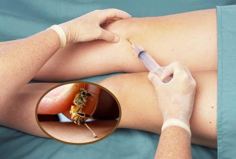 Tiêm thuốc được bào chế từ nọc ong