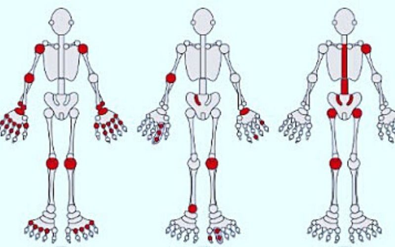 Dựa vào sự viêm đau ở các vị trí khớp để chẩn đoán