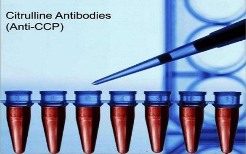Anti - CCP là xét nghiệm chẩn đoán chuyên sâu điển hình
