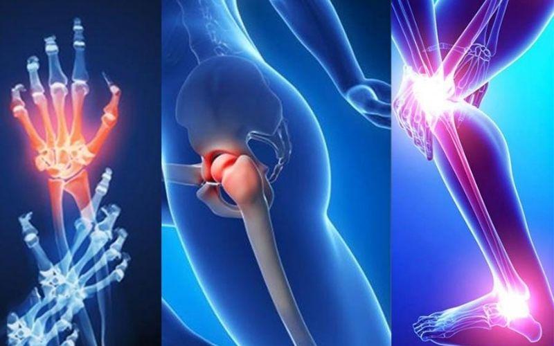 Viêm khớp dạng thấp được chẩn đoán dựa trên các tiêu chuẩn y khoa được nghiên cứu