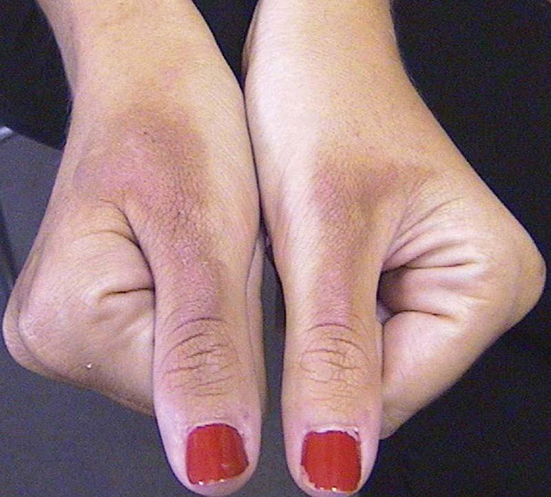 Hình ảnh biến đổi sắc tố da ở giai đoạn sau của bệnh