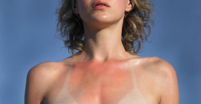 Viêm da tiếp xúc ánh sáng dạng nhẹ có biểu hiện như cháy nắng thông thường