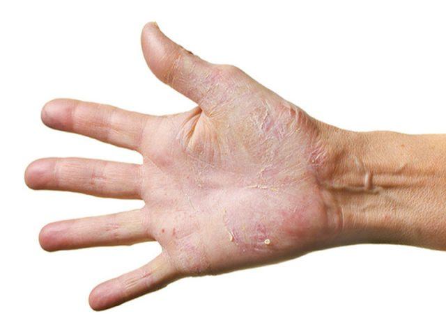Các triệu chứng viêm da tiếp xúc ở tay có thể dễ nhầm lẫn với một số bệnh lý da liễu khác