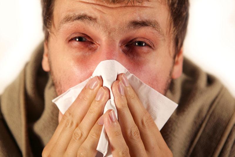 Các triệu chứng bệnh tương đối giống một trường hợp viêm mũi dị ứng thông thường nhưng có mức độ nặng hơn