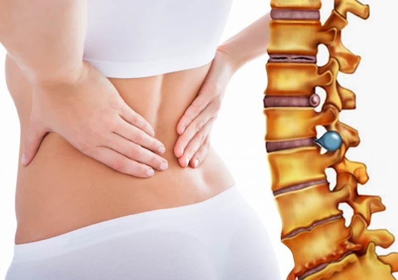 Thoát vị đĩa đệm gây nhiều ảnh hưởng xấu đến sức khỏe