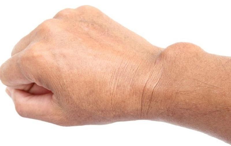 Viêm bao hoạt dịch khớp cổ tay là gì
