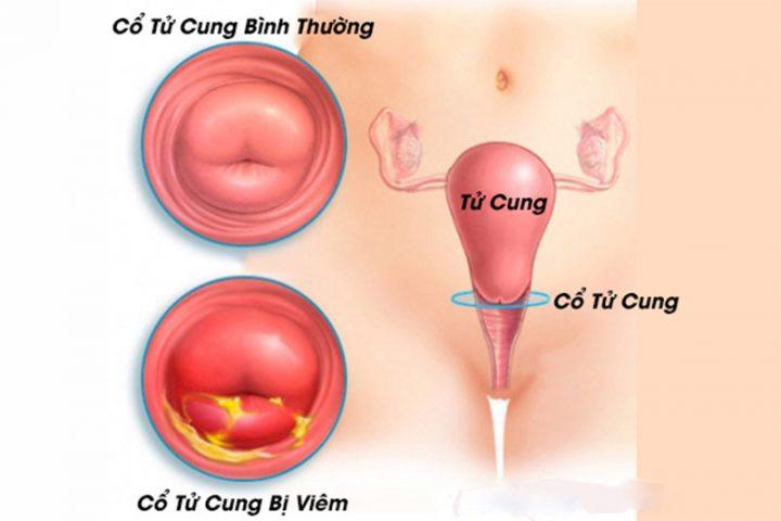 Nhiễm trùng cổ tử cung là một trong những bệnh lý phụ khoa nguy hiểm nhất
