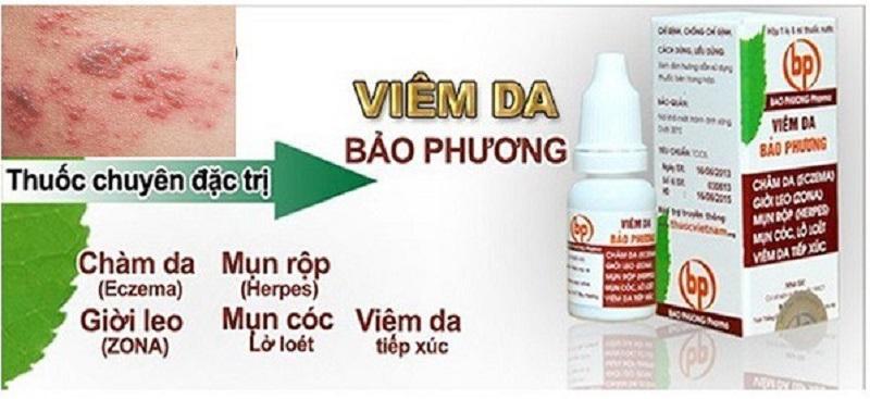 Sản phẩm viêm da Bảo Phương có khả năng điều trị hoặc hỗ trợ cải thiện diễn biến của bệnh lý ngoài da.