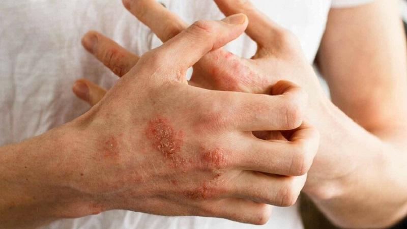 Viêm da cơ địa nằm là một bệnh lý da liễu phổ biến