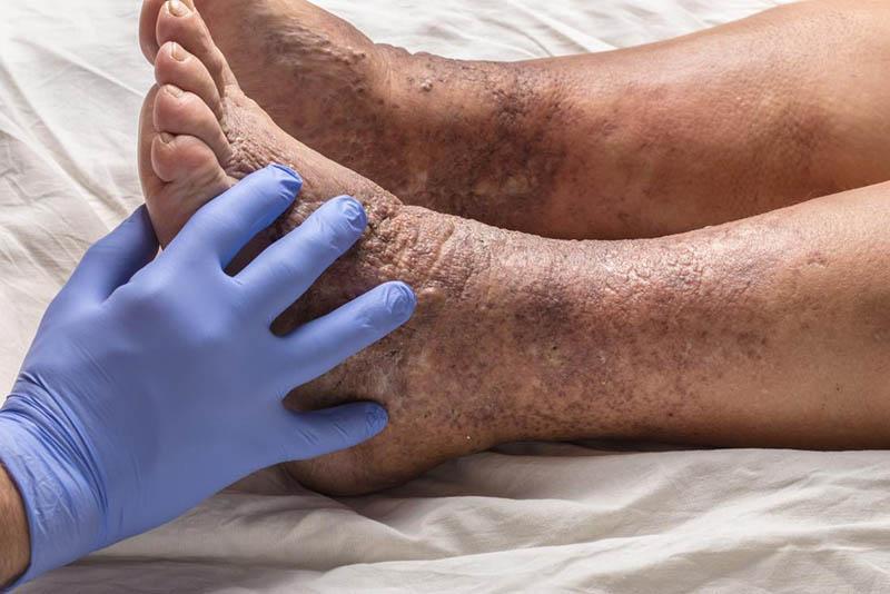 Viêm da cơ địa ở chân nếu không được điều trị đúng các có thể gây hoại tử da