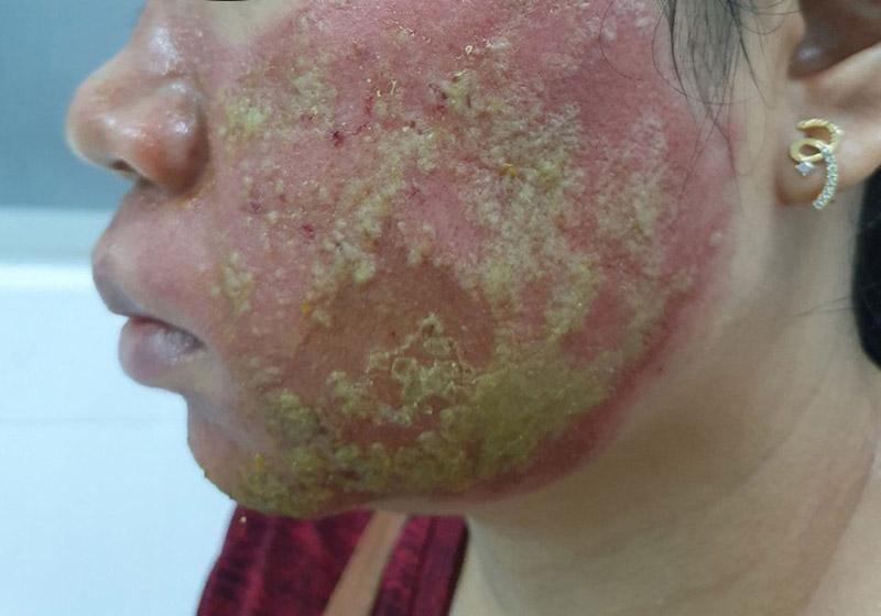 Nhiễm trùng là biến chứng nguy hiểm có thể gặp phải ở người bệnh viêm da cơ địa trên mặt, môi
