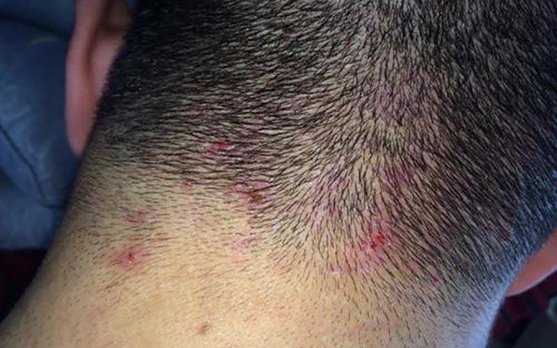 Da đầu tiết quá nhiều dầu hay các tác nhân ô nhiễm ảnh hưởng làm cho nang lông bị viêm, dẫn đến rụng tóc.