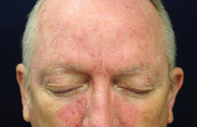 Giữ vệ sinh và dưỡng ẩm cho da hợp lý, hạn chế để cho vùng da bị bệnh phải cọ xát