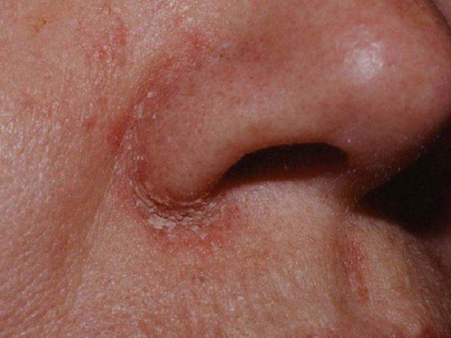 viêm da dầu ở cánh mũi
