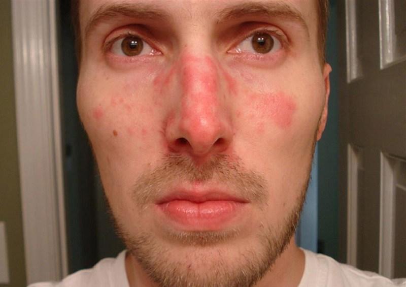Dấu hiệu nhận biết viêm da dầu ở cánh mũi