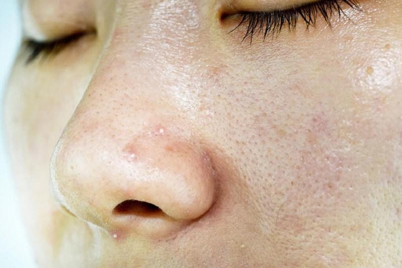 Viêm da dầu ở cánh mũi có xu hướng tái phát nhiều lần trong năm