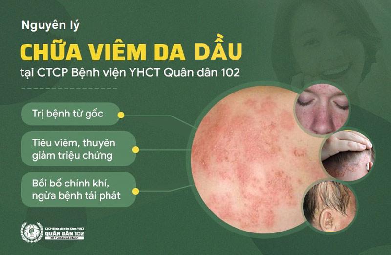 Bài thuốc viêm da dầu Quân dân 102 điều trị bệnh triệt để nhờ cơ chế tác động toàn diện