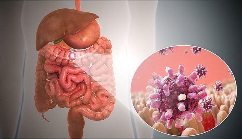 Viêm dạ dày ruột cấp là gì?
