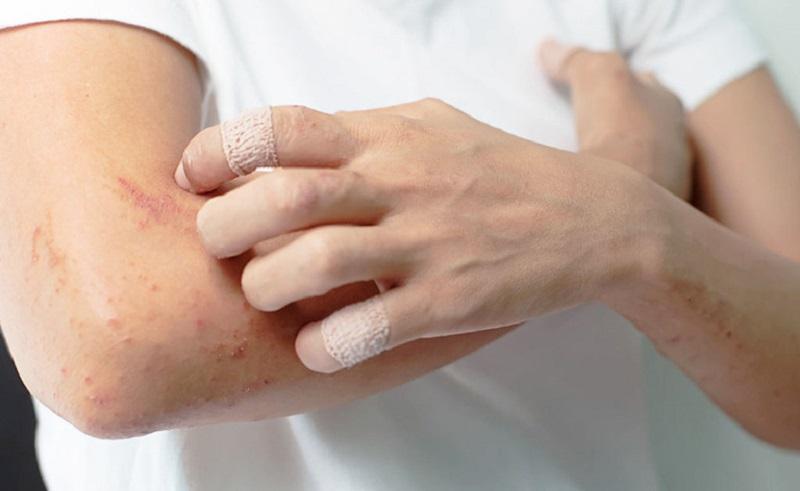 Viêm da dị ứng bao lâu thì khỏi là thắc mắc của không ít bệnh nhân.