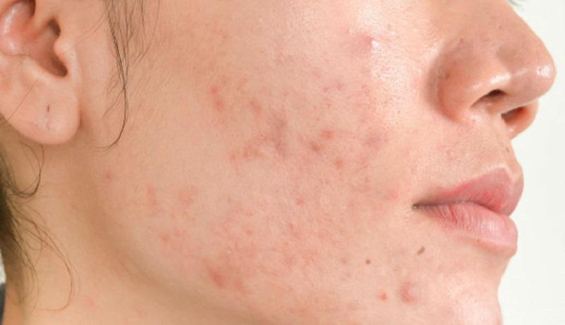 Dấu hiệu nhận biết viêm da dị ứng ở mặt