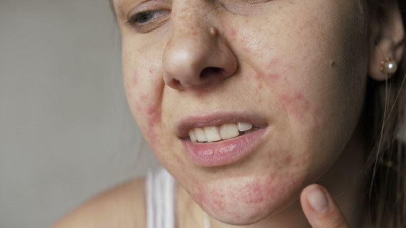 Bệnh viêm da dị ứng có thể gây nên nhiều biến chứng nguy hiểm.