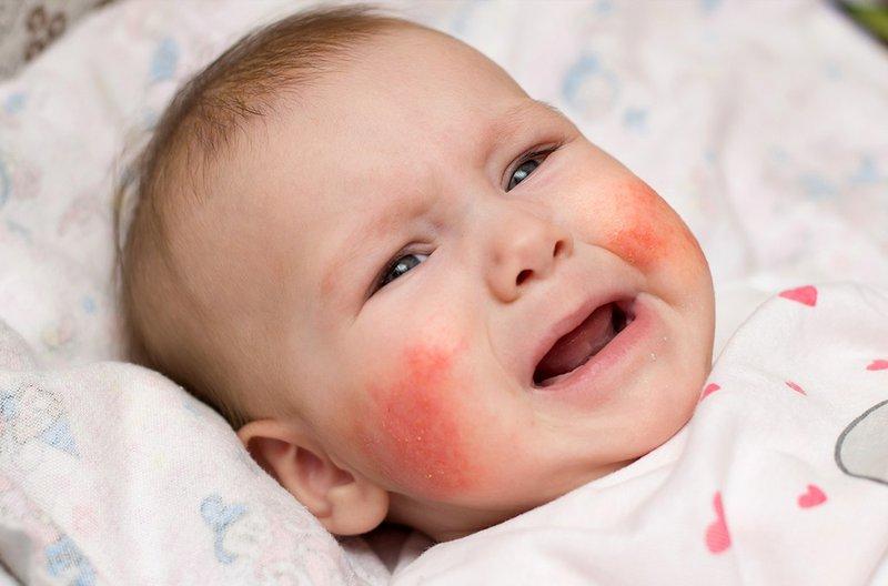 Viêm da dị ứng ở trẻ sơ sinh gây nên các tổn thương dạng hồng ban, ngứa ngáy...