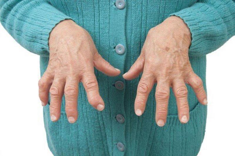 Bệnh sẽ gây đau nhức ở các khớp ngón tay, ngón chân