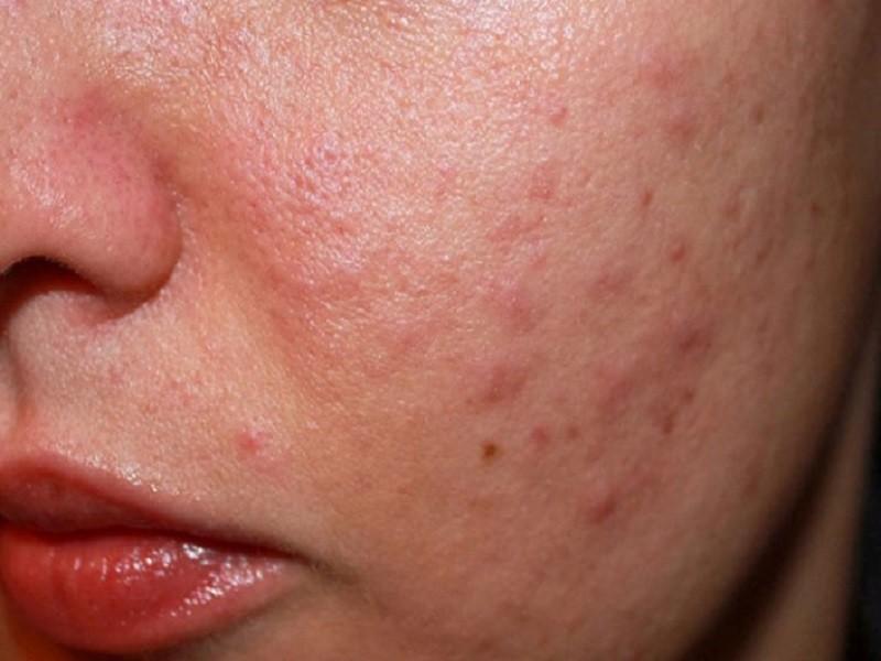Viêm da mặt nổi mụn có nguy hiểm không