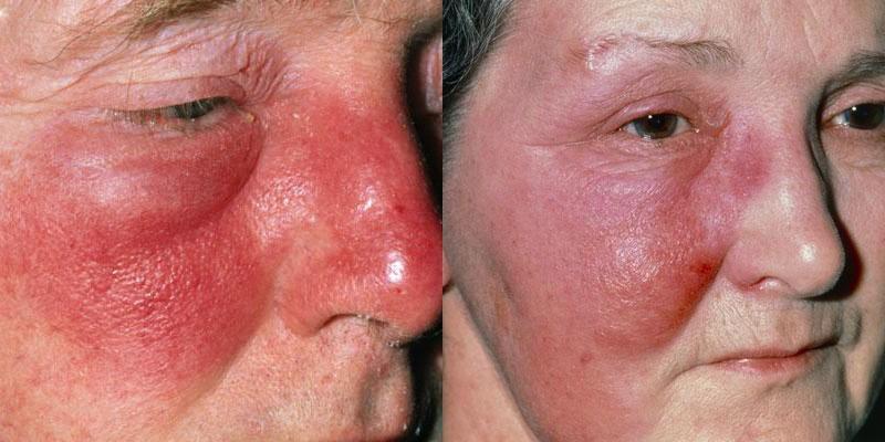 Viêm quầng cũng là một thể bệnh của viêm da mủ