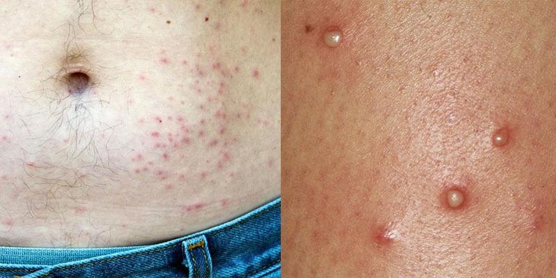 Viêm nang lông cũng là một trong những thể bệnh viêm da mủ