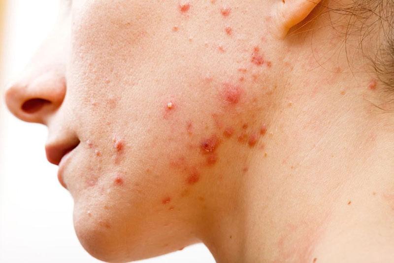 Viêm da mủ còn dễ lan rộng ra các vùng da lành lặn, gây nên các tổn thương mới