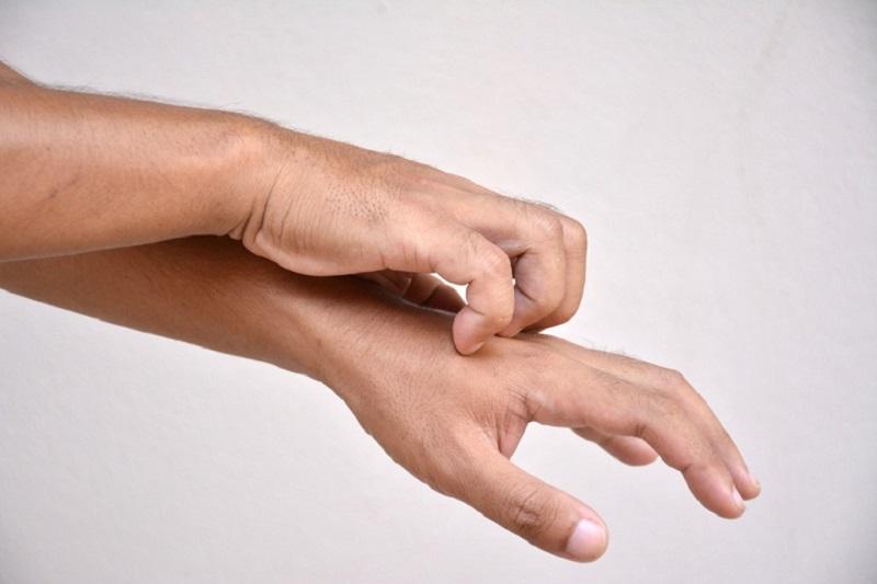 Gãi ngứa quá mạnh có thể dẫn tới nguy cơ tạo thành vết thương hở