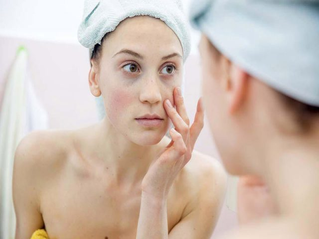 Viêm da tiếp xúc có để lại sẹo không là mối quan tâm của rất nhiều người bệnh