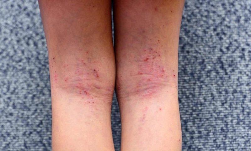 Những dấu hiệu trên da có thể nhanh chóng khắc phục thông qua các biện pháp điều trị tại chỗ.